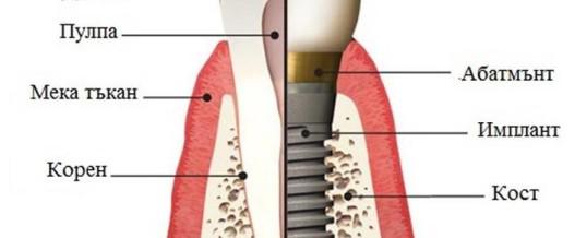 Какво представляват зъбните имплантати!?
