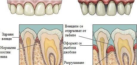 Парoдонтит